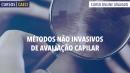 Métodos não Invasivos de avaliação capilar